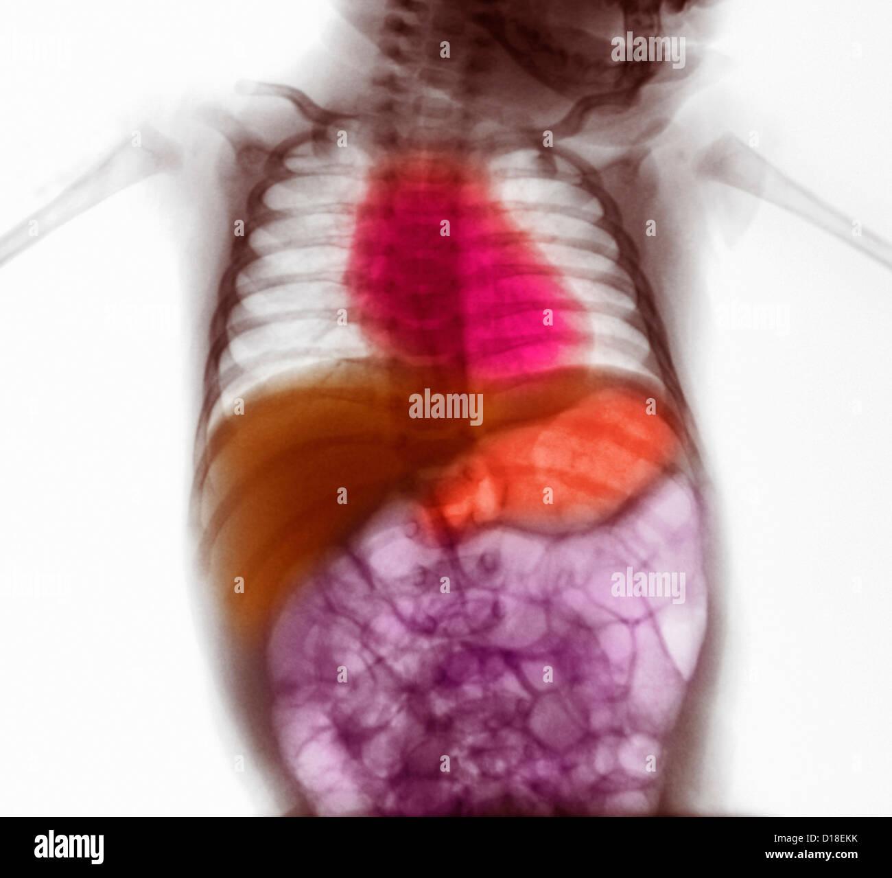 Abdominal X-ray of infant, viral gastroenteritis - Stock Image
