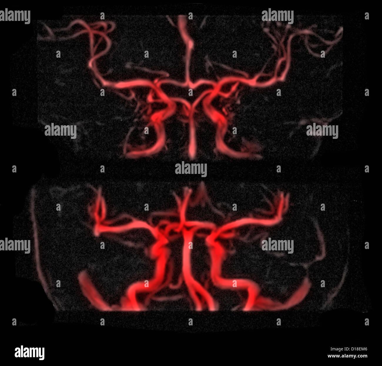 MRI vascular brain radiograph, gadolinium contrast - Stock Image