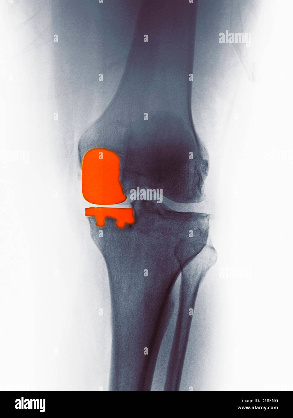 Knee X-ray, partial knee replacement - Stock Image