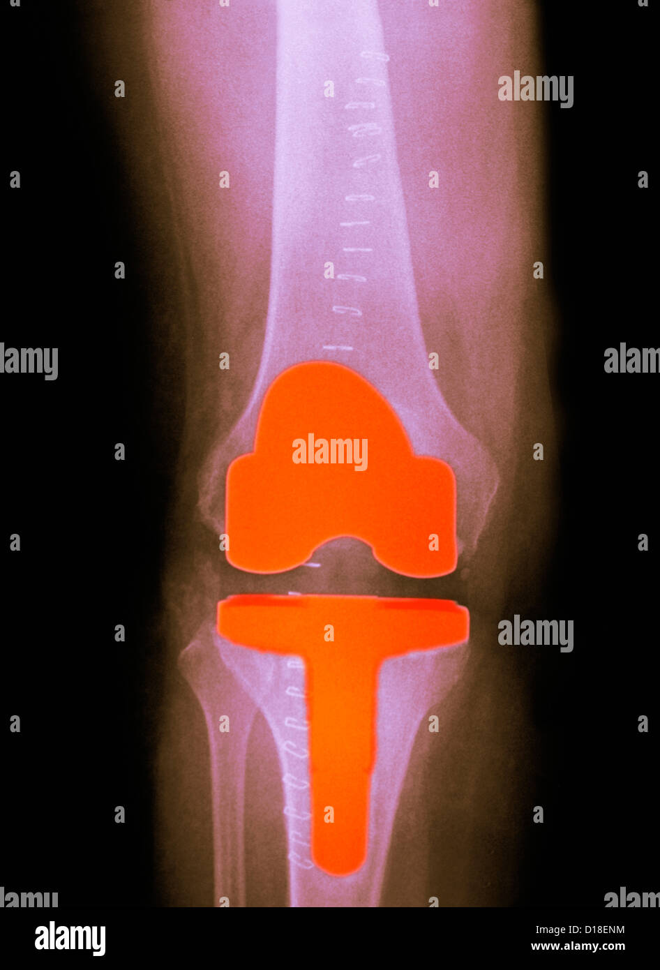 knee replacement in a 61 year old female - Stock Image