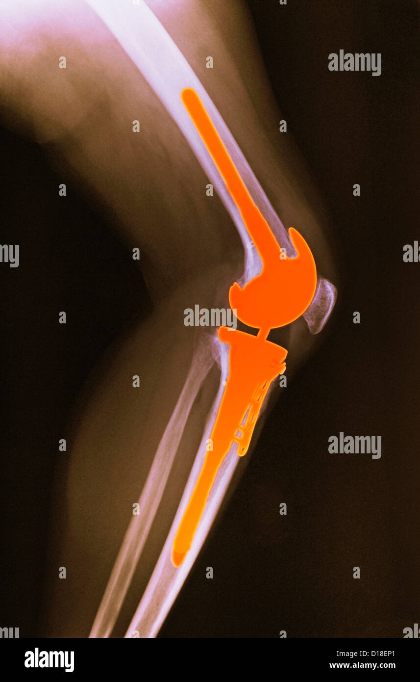 X-ray,  total knee replacement - Stock Image