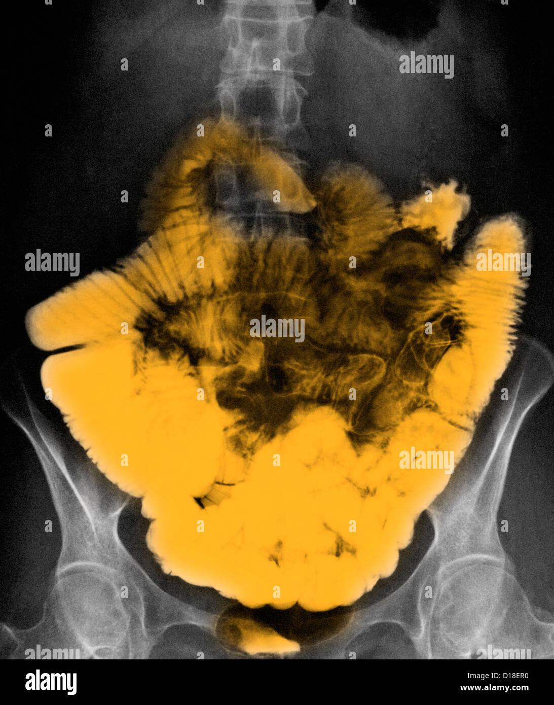 normal small bowel barium contrast abdominal X-ray - Stock Image
