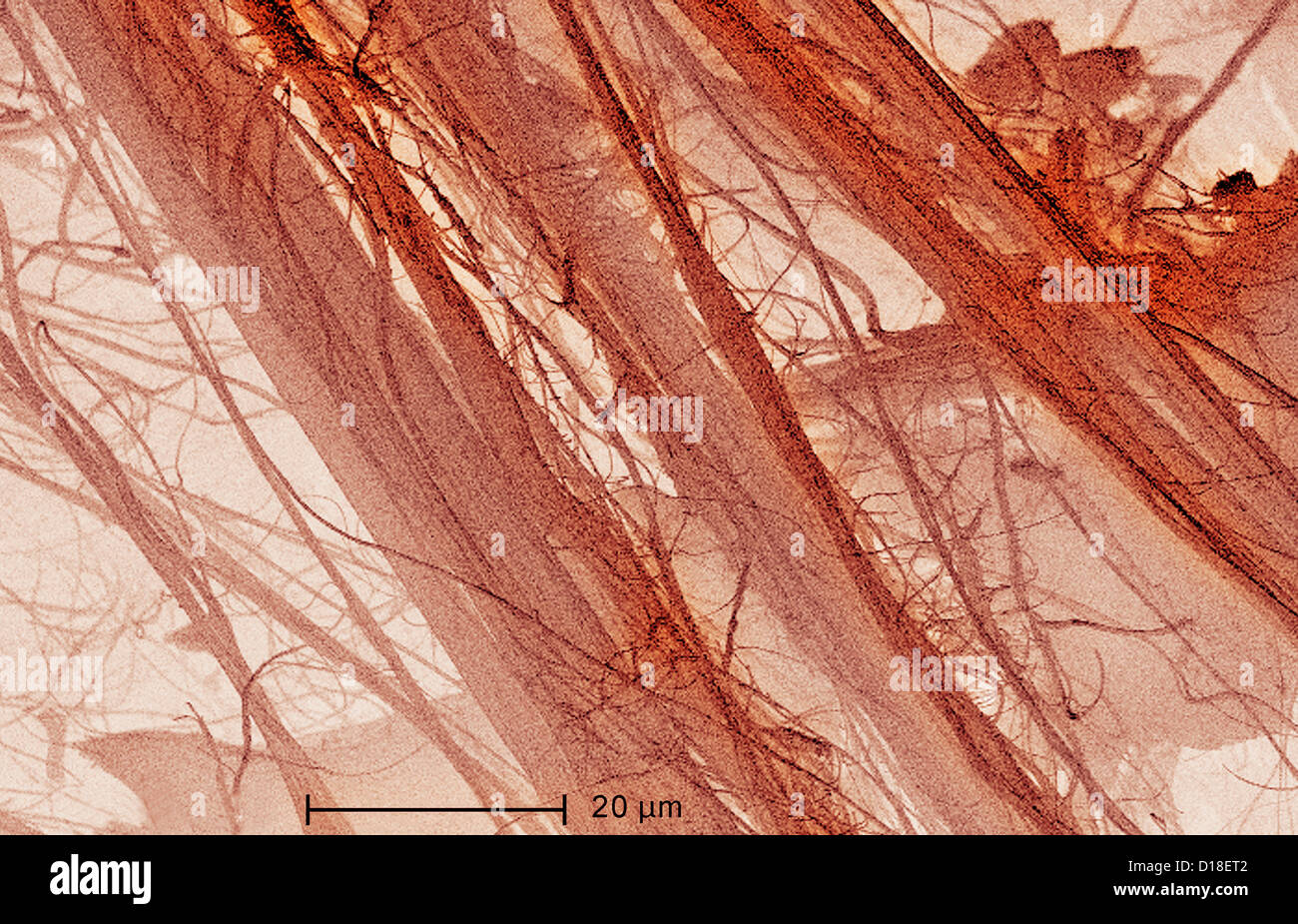 Scanning Electron micrograph of  asbestos, 1200x - Stock Image