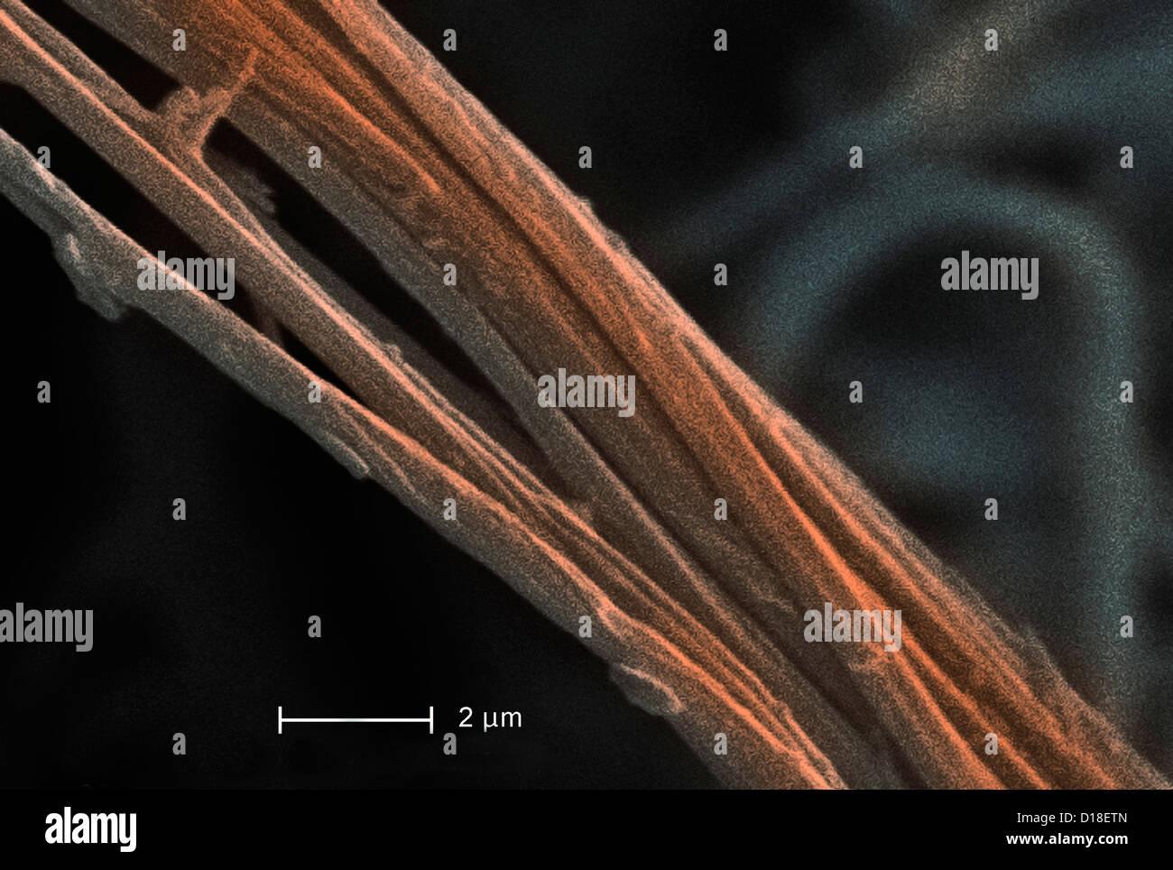 Scanning Electron micrograph of  asbestos, 8000x - Stock Image