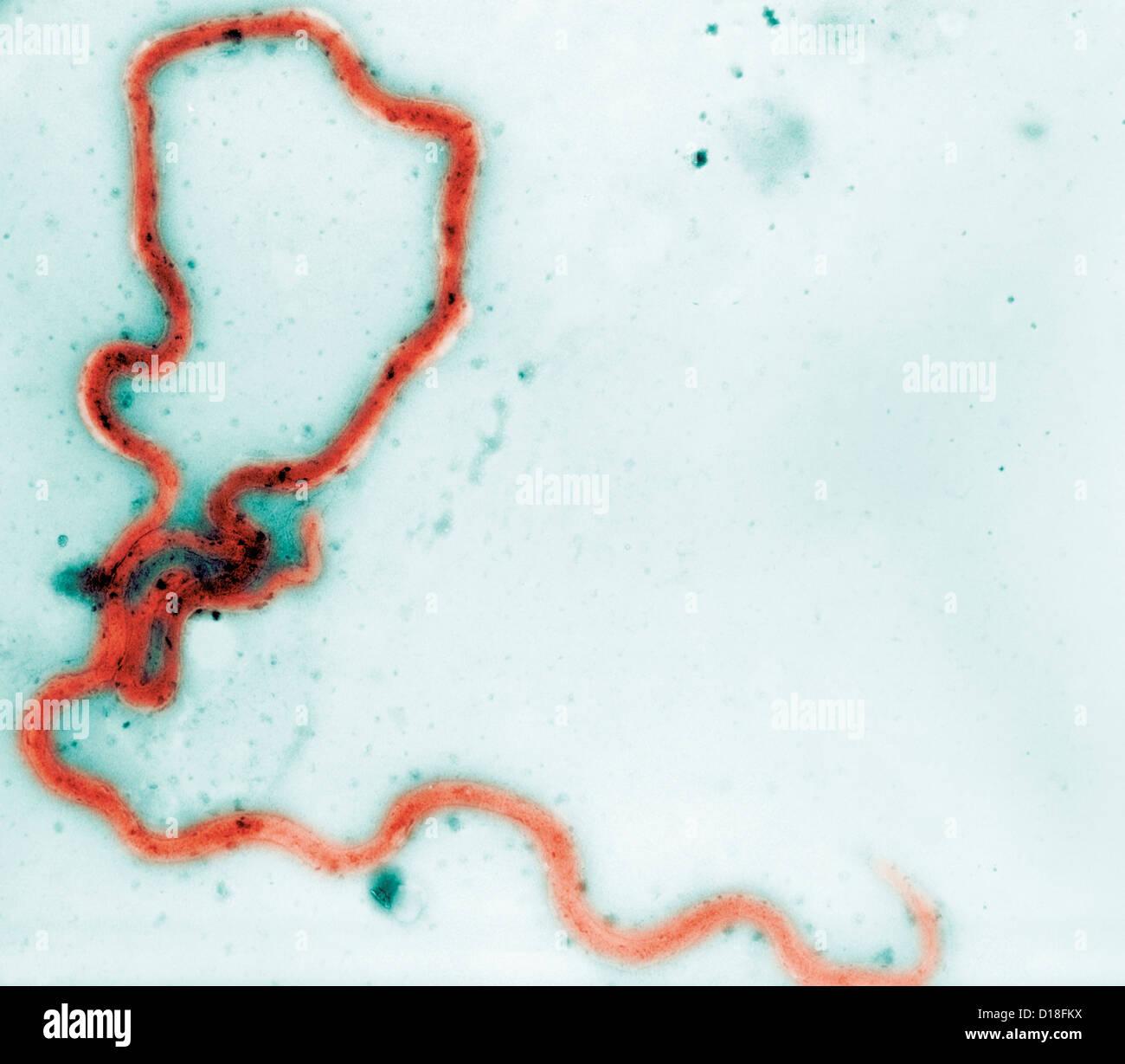 Photomicrograph of Treponema pallidum bacteria - Stock Image