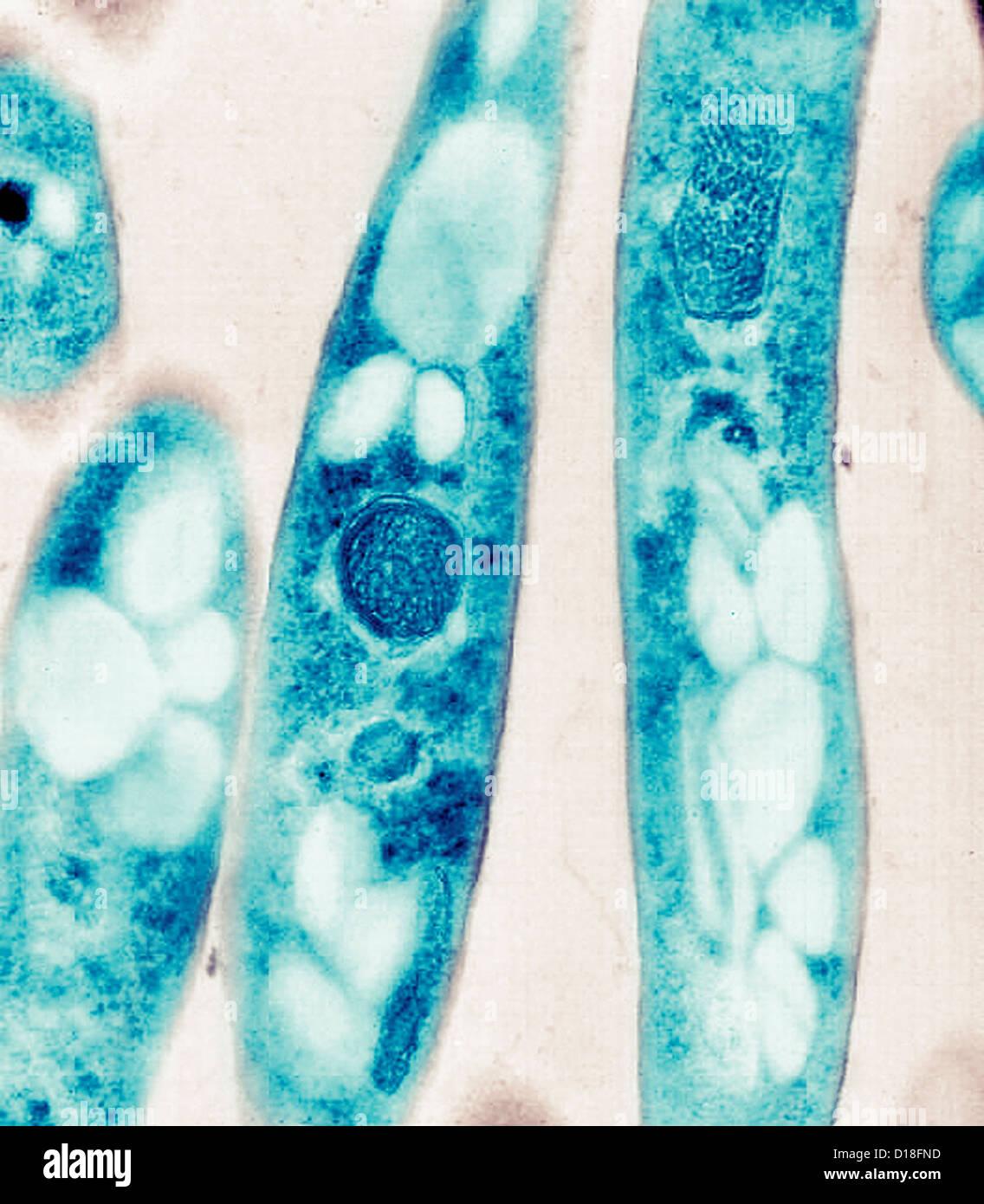 Electron micrograph of Bacillus anthracis bacteria - Stock Image