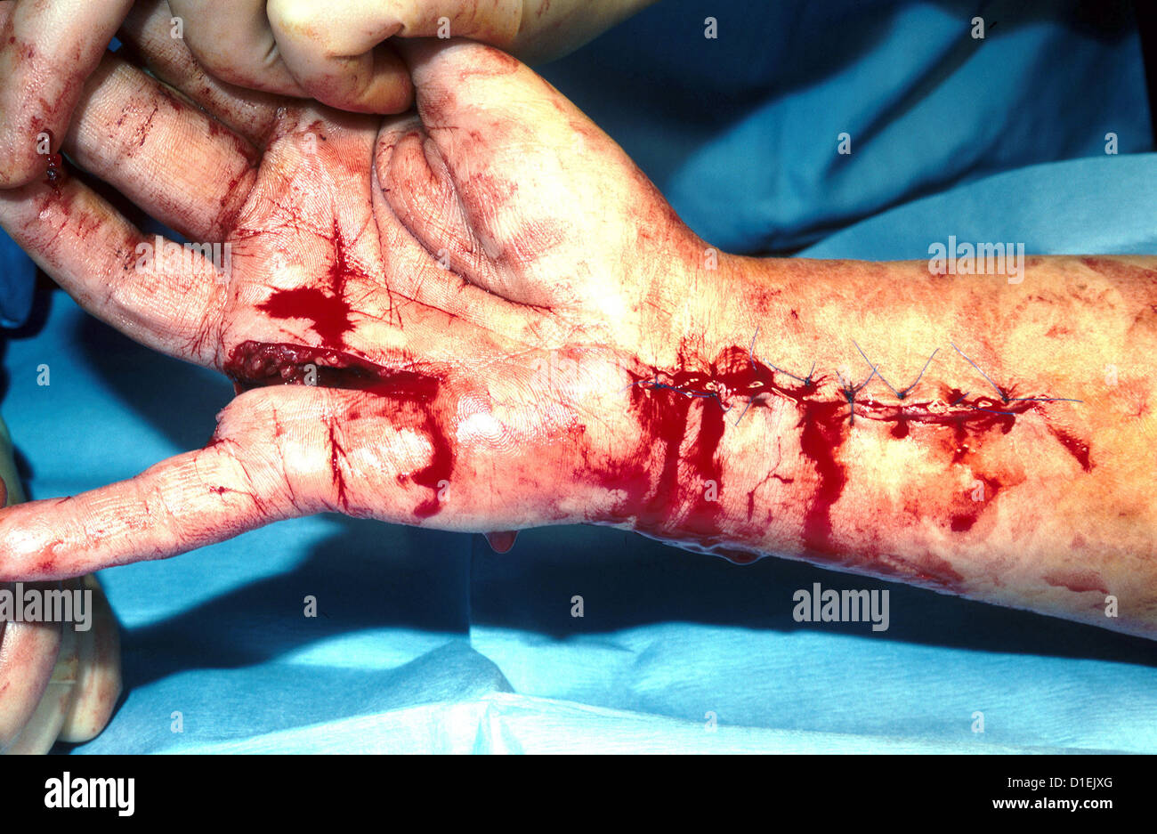 Lacerations of hand and arm. The arm has been sutured. - Stock Image