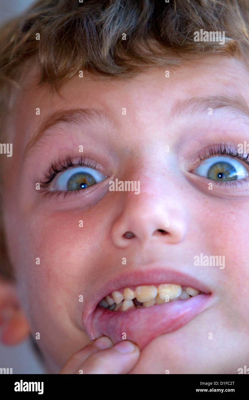 Seven year old boy with missing tooth. - Stock Image