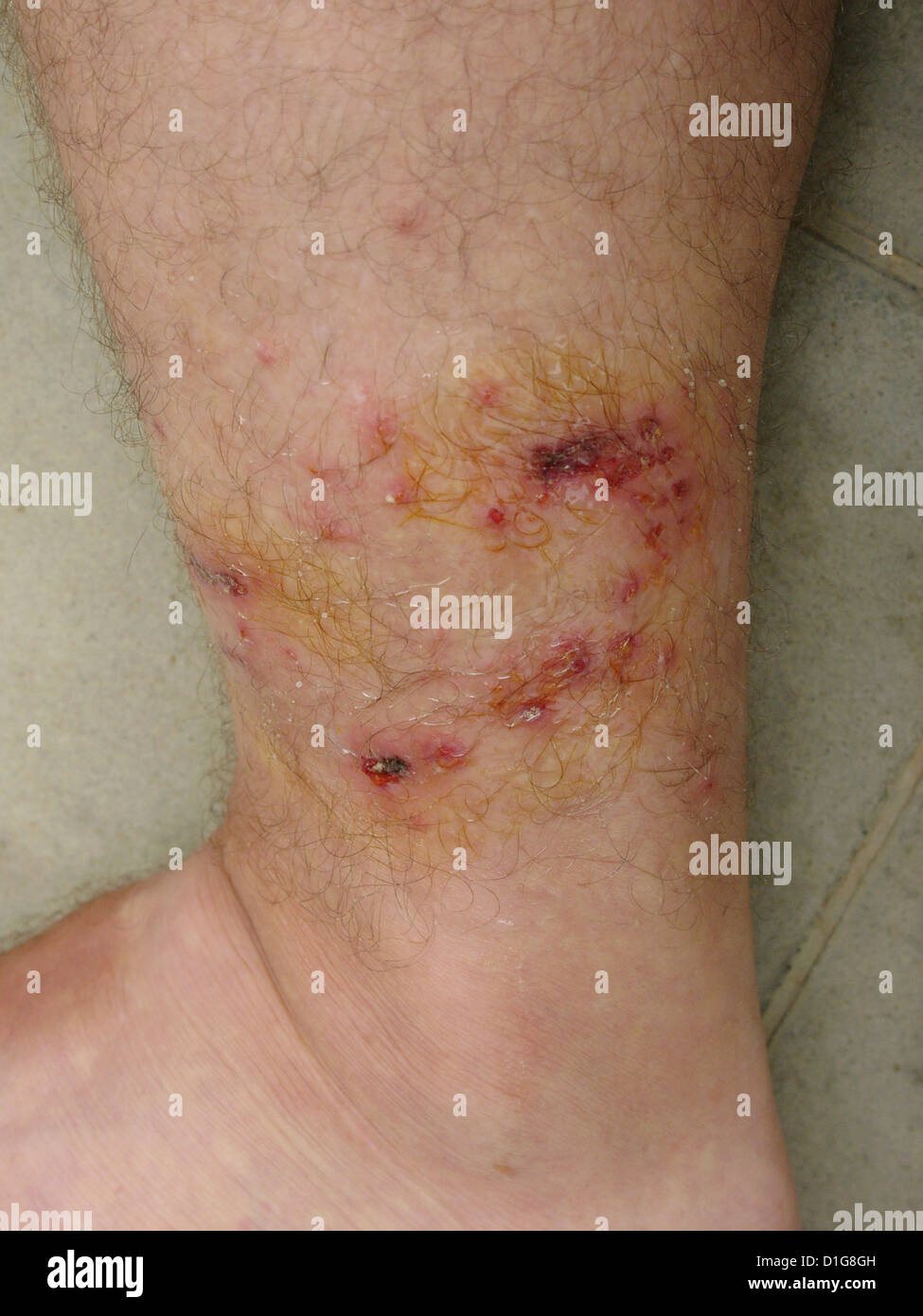 Human Rabies From Dog Bite