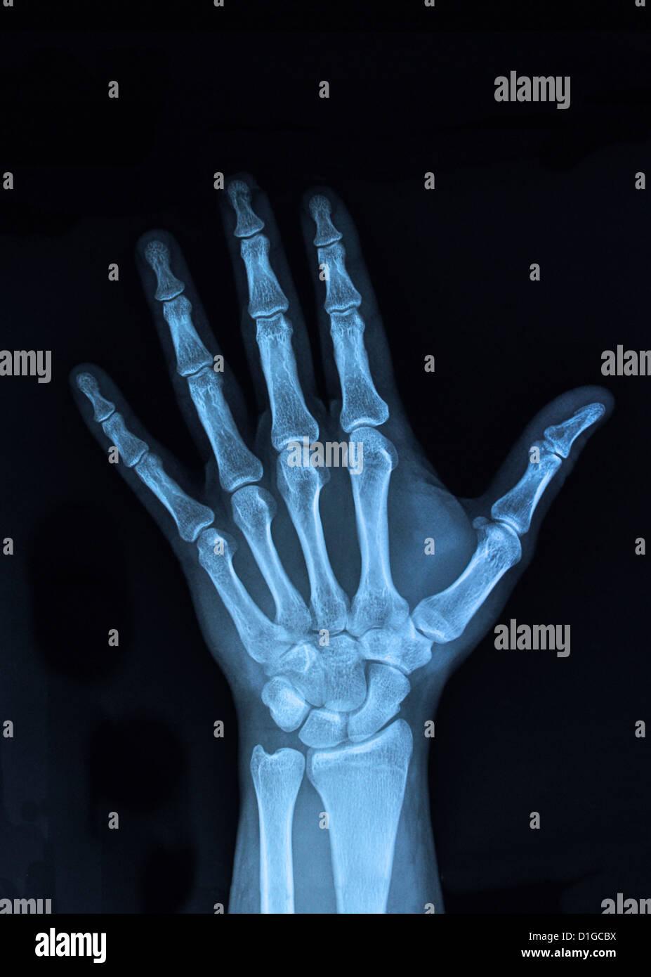 xray hand - Stock Image