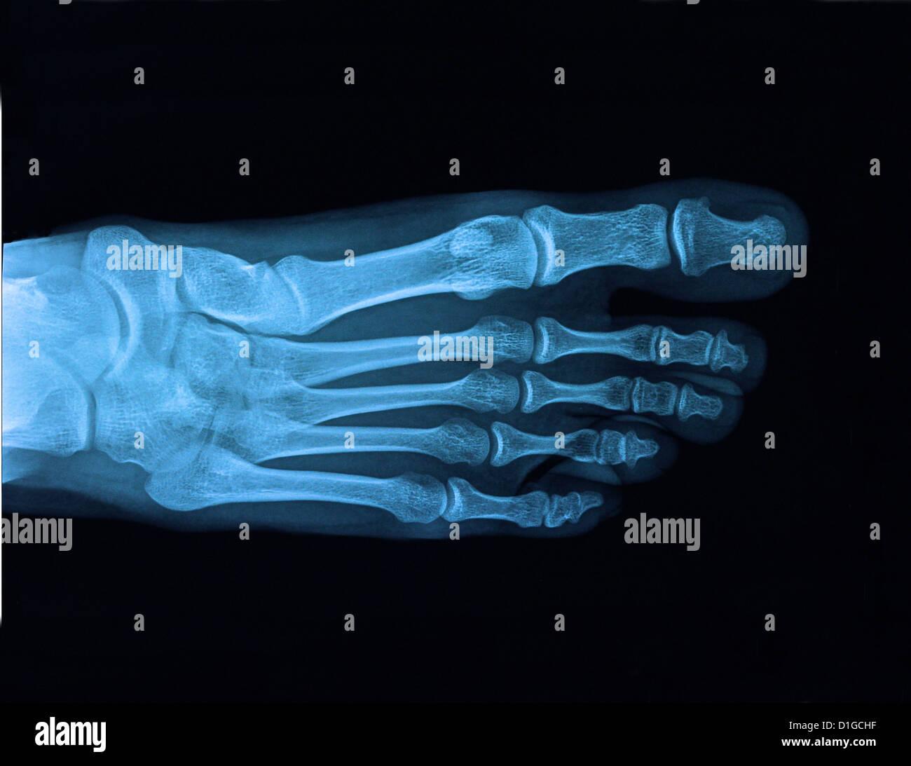 xray foot - Stock Image