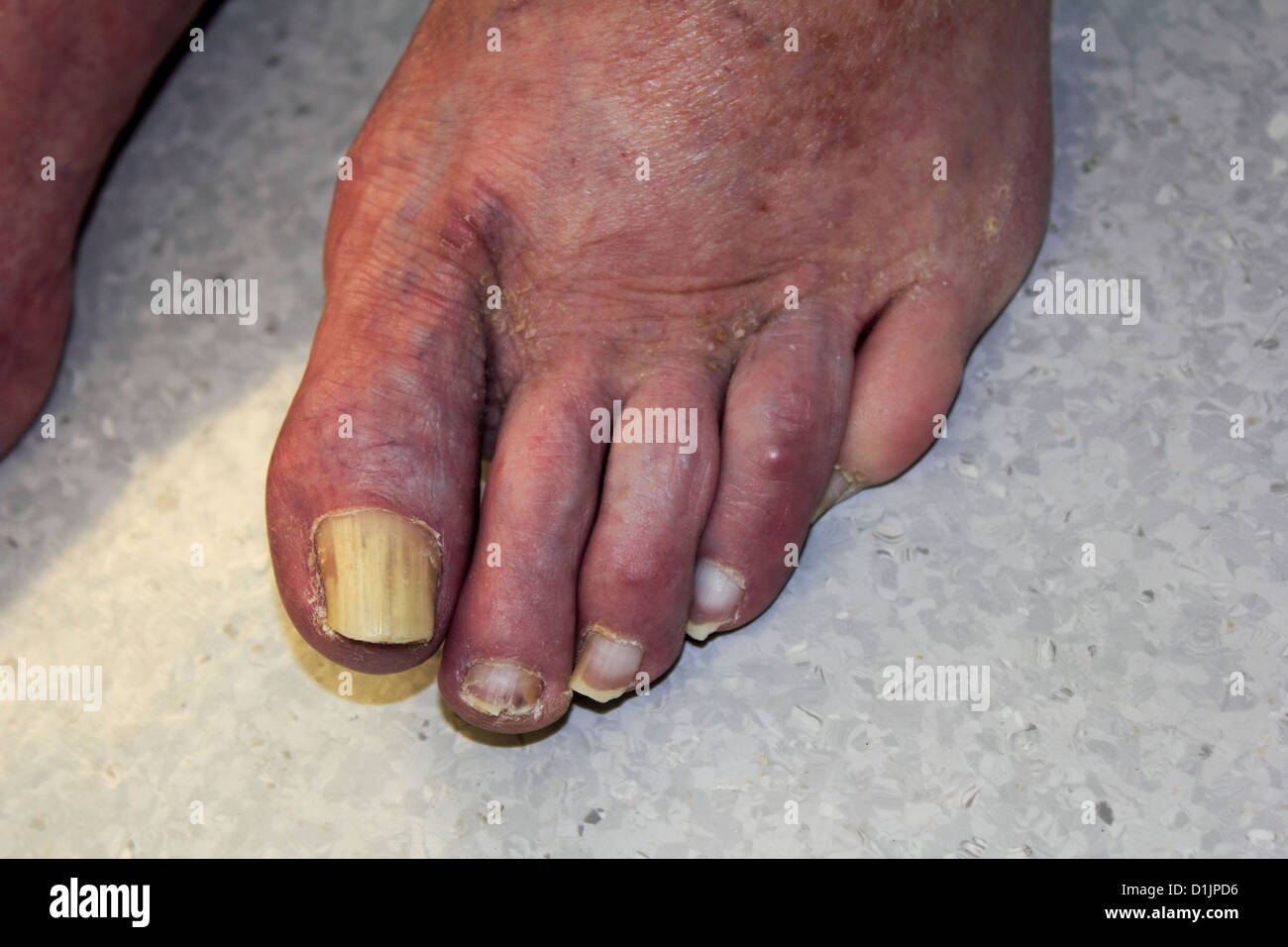 Foot And Toes On An 88 Year Old Elderly Man Showing Fungus On Toe