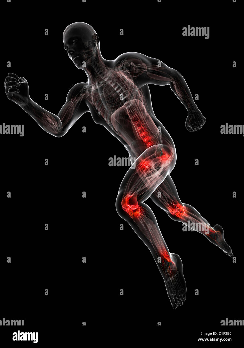 Running injuries, conceptual artwork - Stock Image