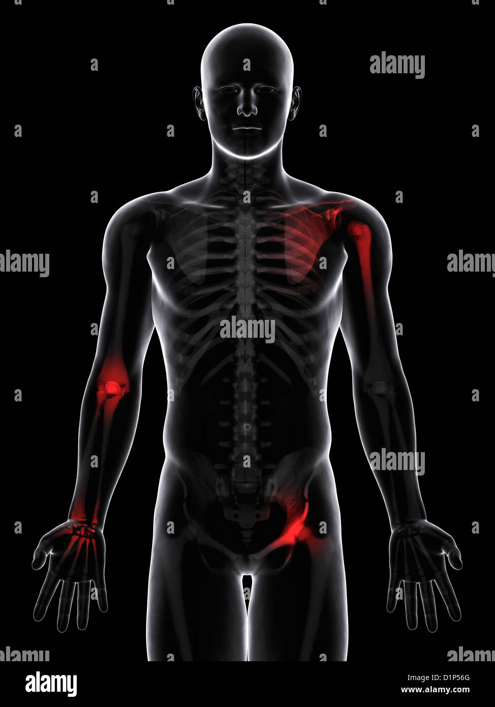 Joint pain, conceptual artwork - Stock Image