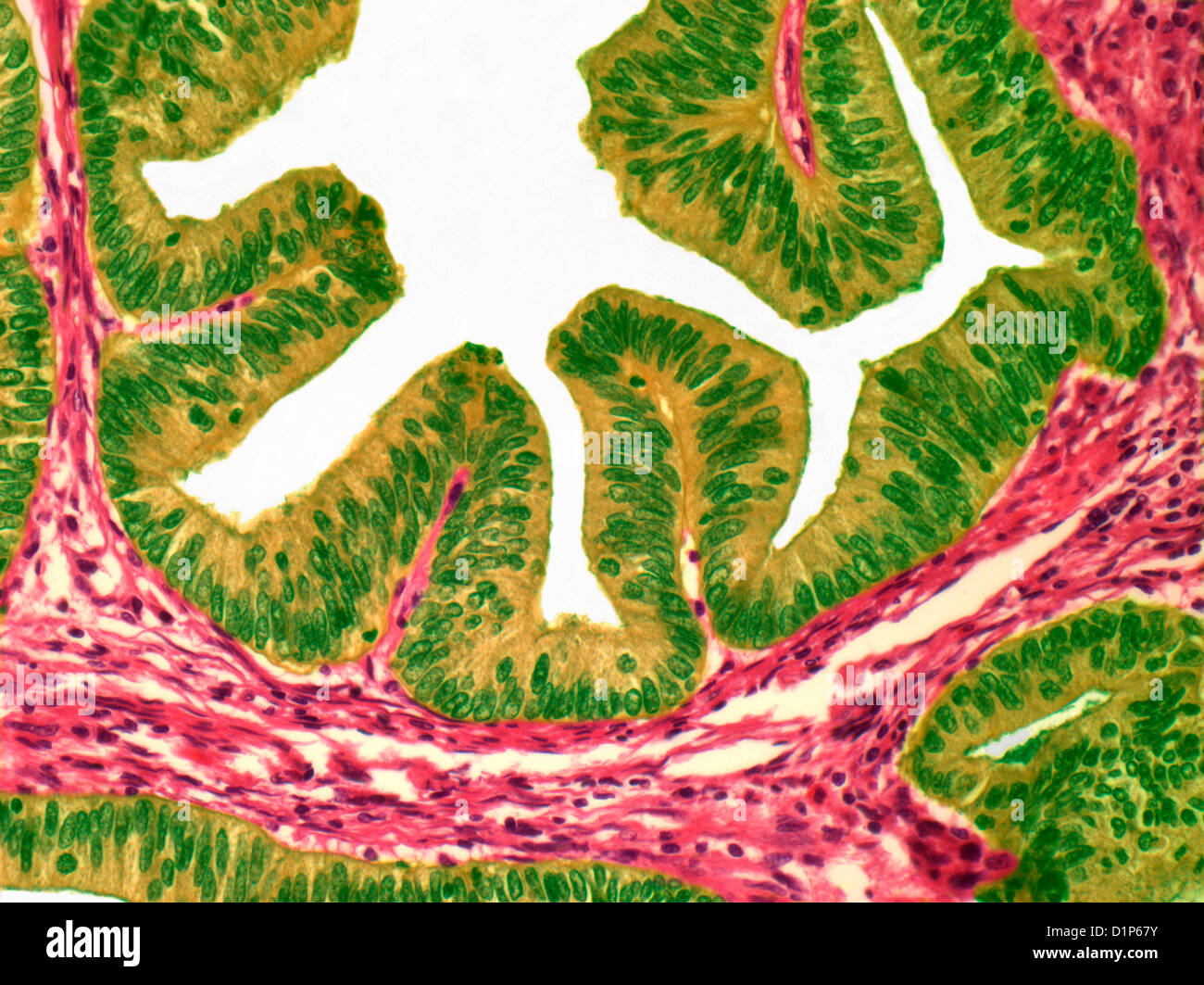 Uterine cancer, light micrograph - Stock Image