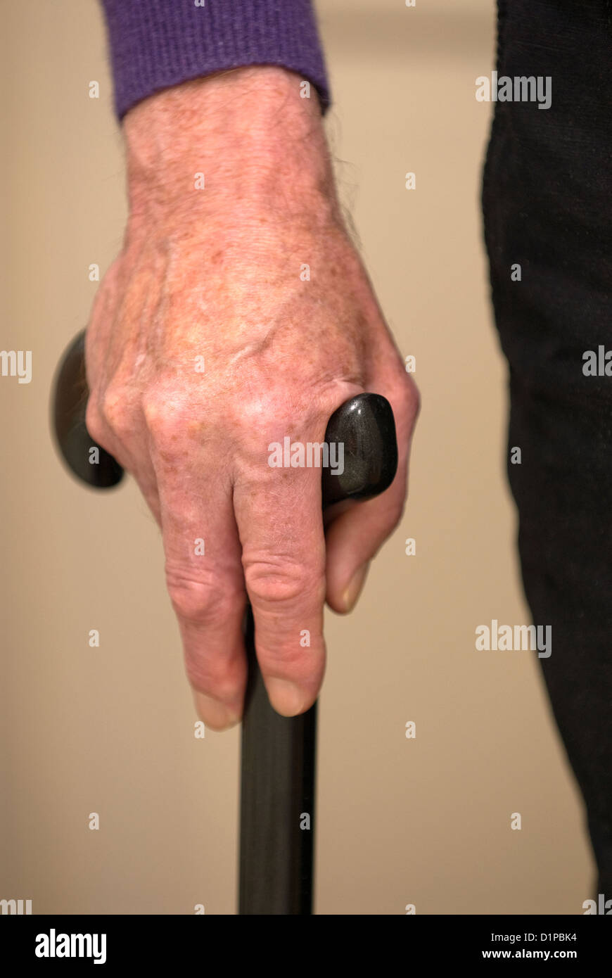 Man with physical disability holding walking stick, London, UK. Model Released (MR) image. - Stock Image