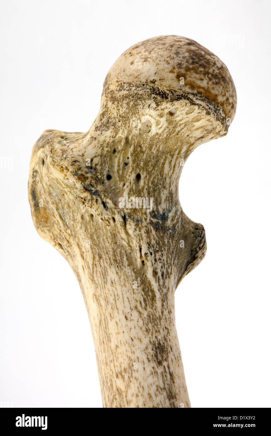 Human femur bone, close up to show the neck of femur, the commonest area to fracture in a fall, Right femur, anterior - Stock Image
