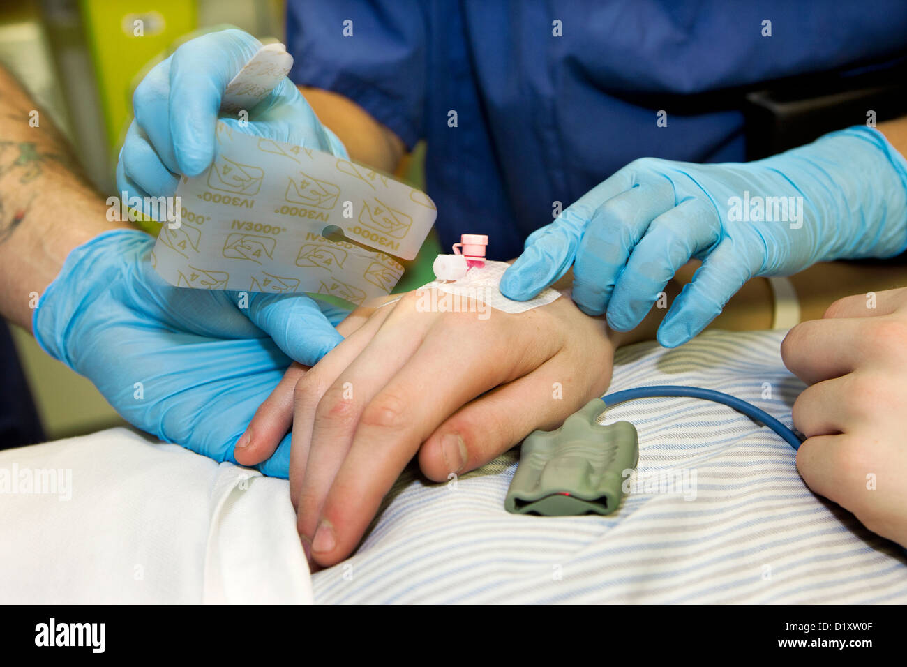 Inserting a Cannula into the back of the hand before surgical operation - Stock Image