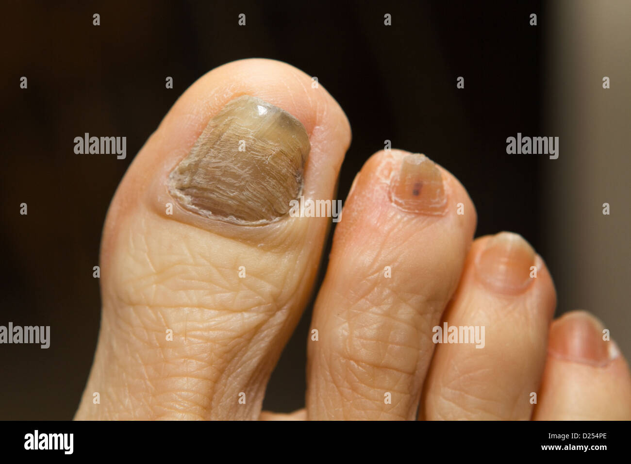 Ridged, thick and discolored toenail with fungus, a side effect ...