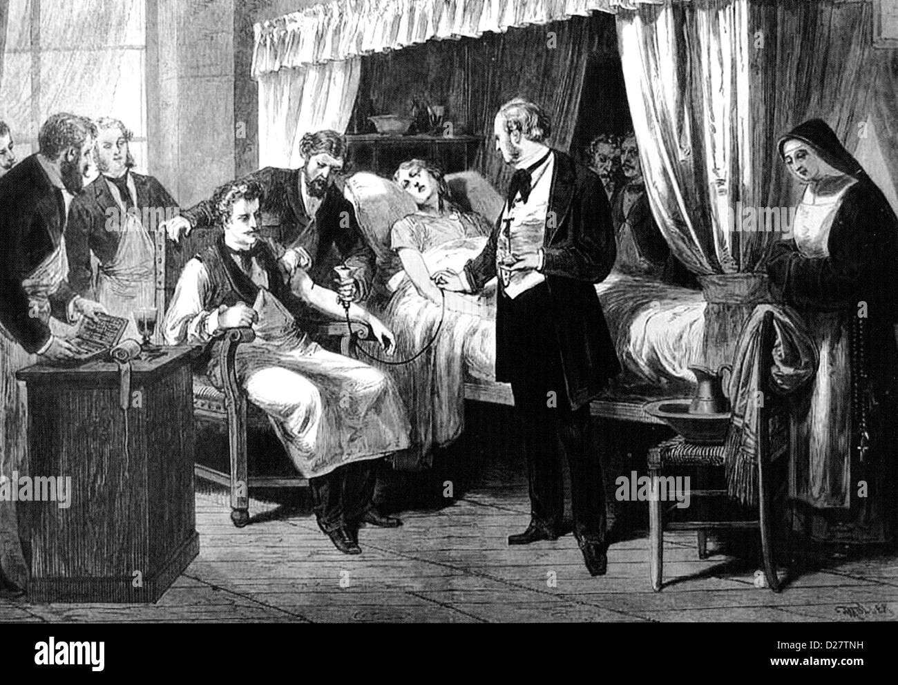 BLOOD TRANSFUSION at the Hopital de la Pitie, Paris, in 1874 - Stock Image