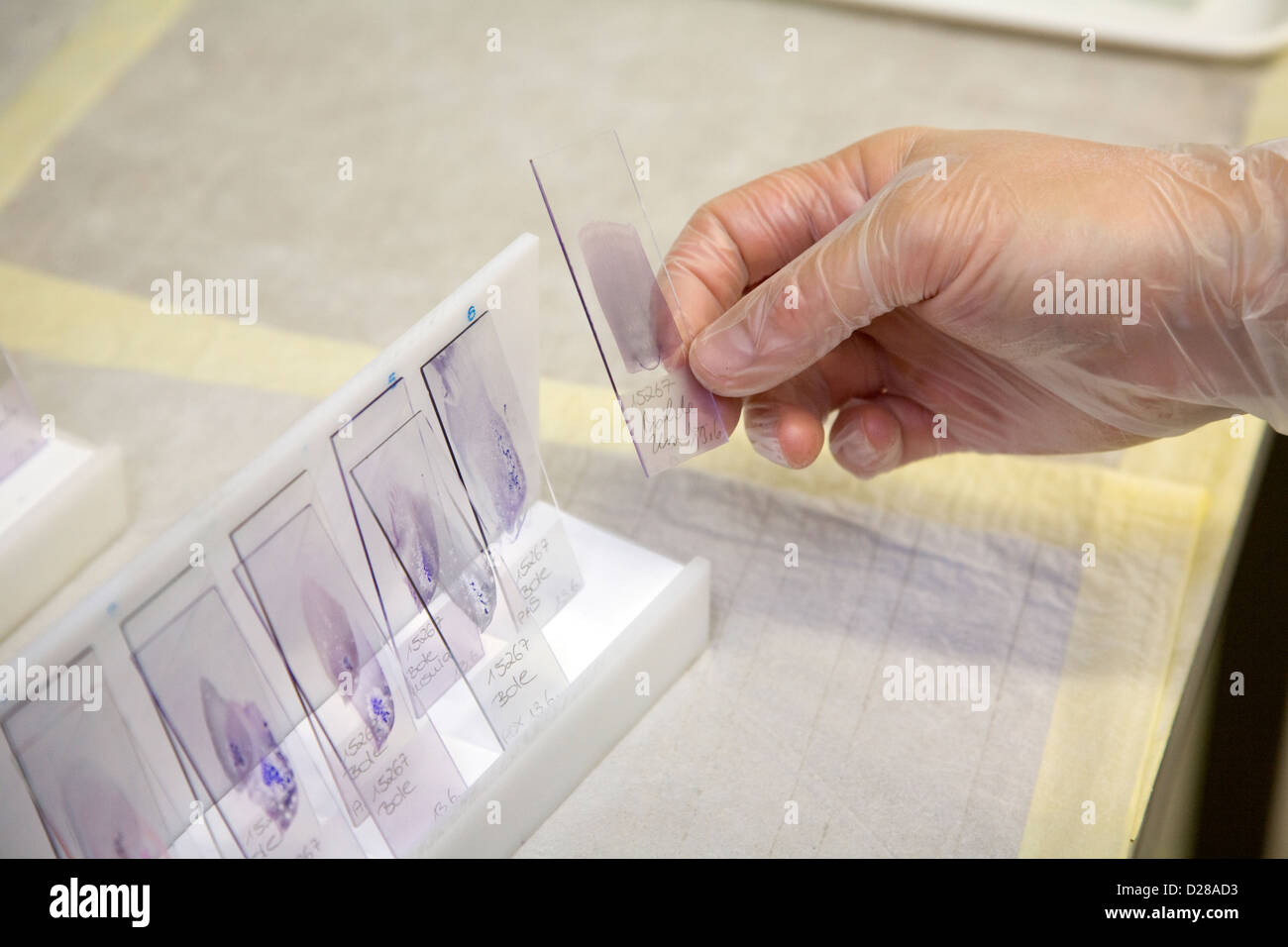 Essen, Germany, manufactures Zytologieassistentin Gewebepraeparate Stock Photo