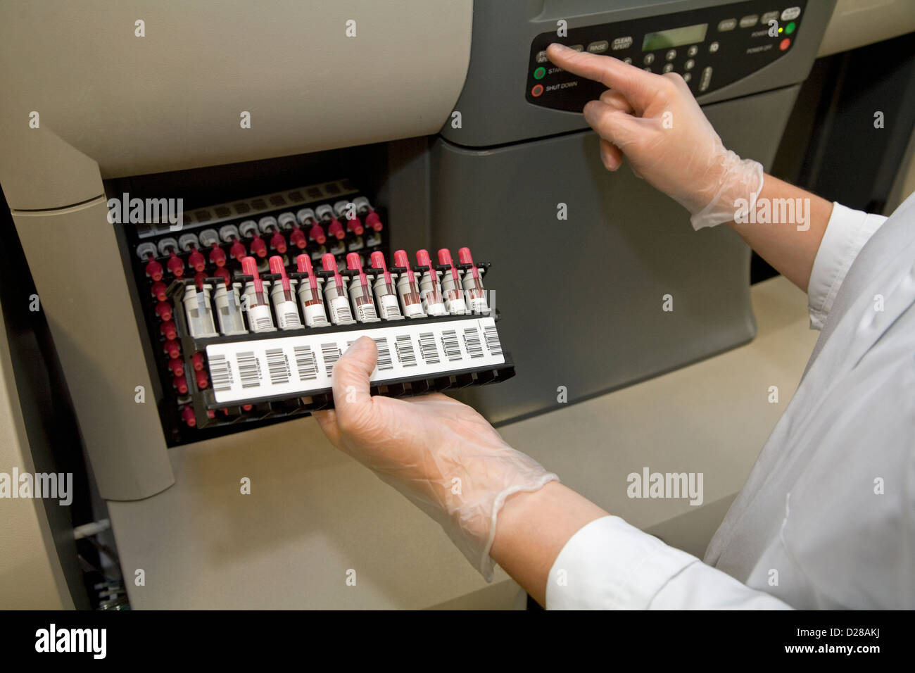 Essen, Germany, Zytologieassistentin filled one machine for imaging blood - Stock Image