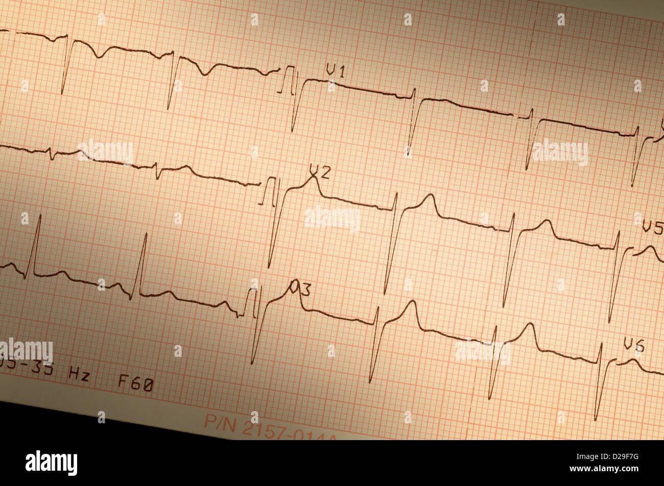 Closeup of electrocardiogram EKG pr - Stock Image
