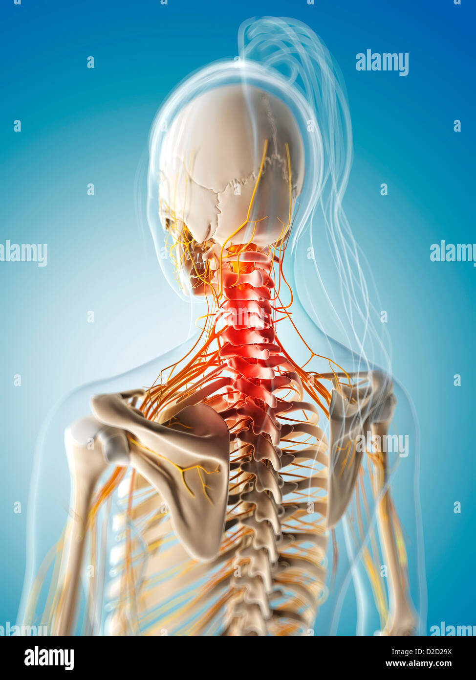 Neck pain conceptual computer artwork Stock Photo: 53147638 - Alamy