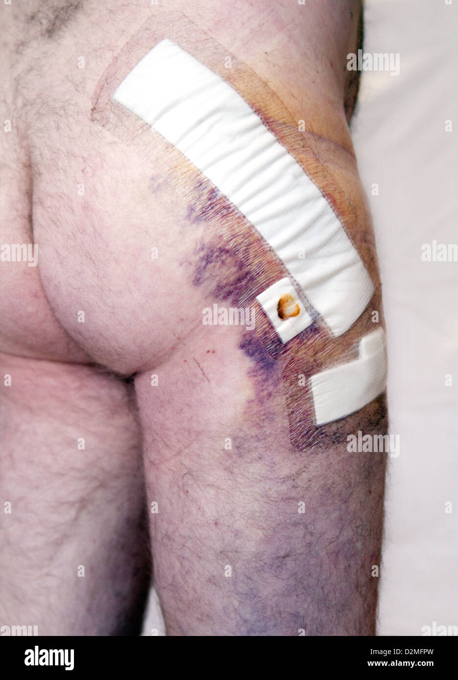 The bruising and dressings 5 days after a total hip replacement operation in a middle aged man, UK - Stock Image