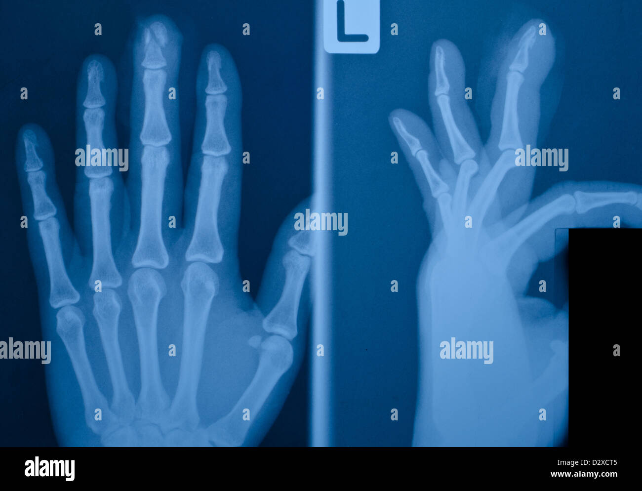 Finger Fracture Stock Photos & Finger Fracture Stock Images - Alamy