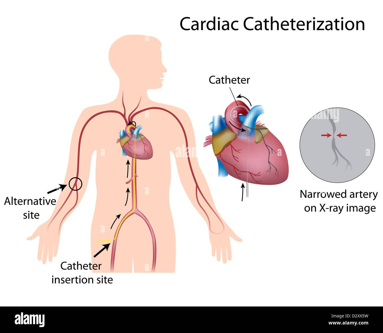 Cardiac catheterization Stock Photo: 53451717 - Alamy