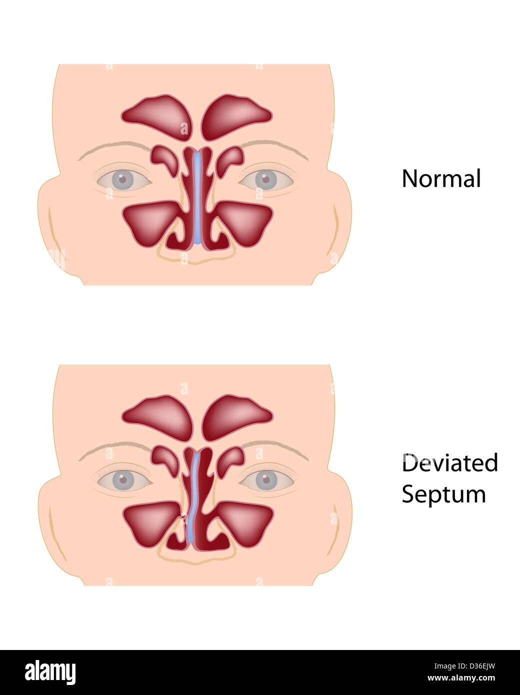 Nasal Septum Stock Photos & Nasal Septum Stock Images - Alamy