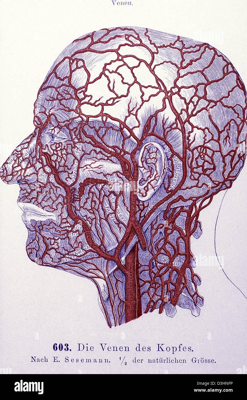 Radiology of Dural Sinus Thrombosis