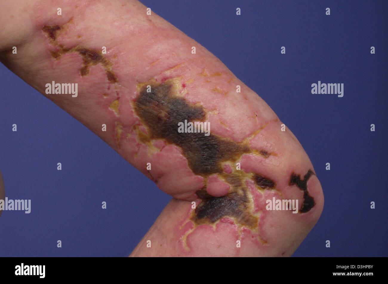 jellyfish sting skin stock photos jellyfish sting skin stock