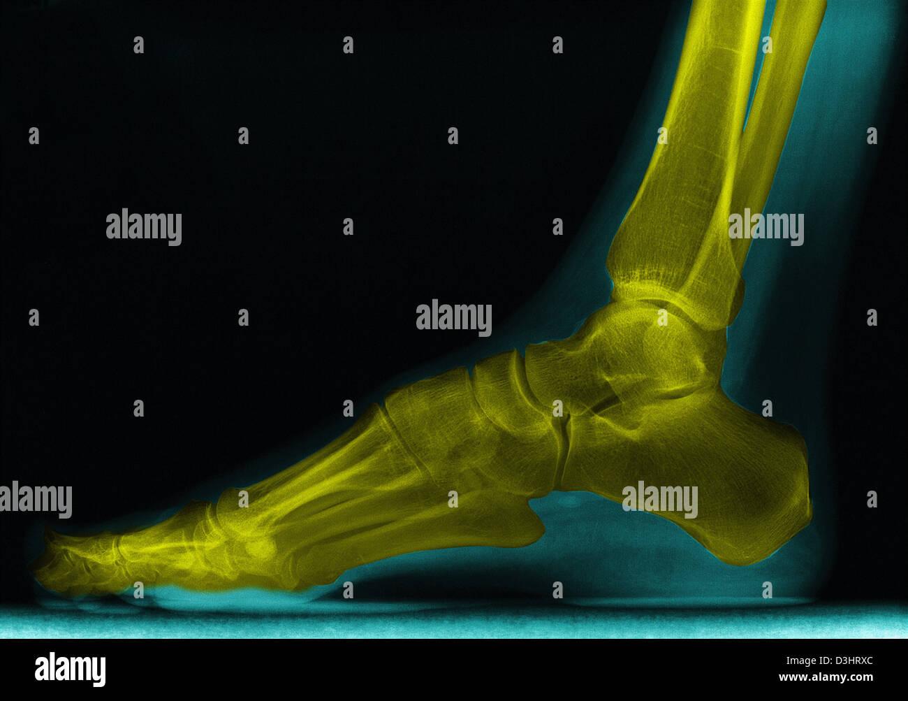 FOOT, X-RAY - Stock Image