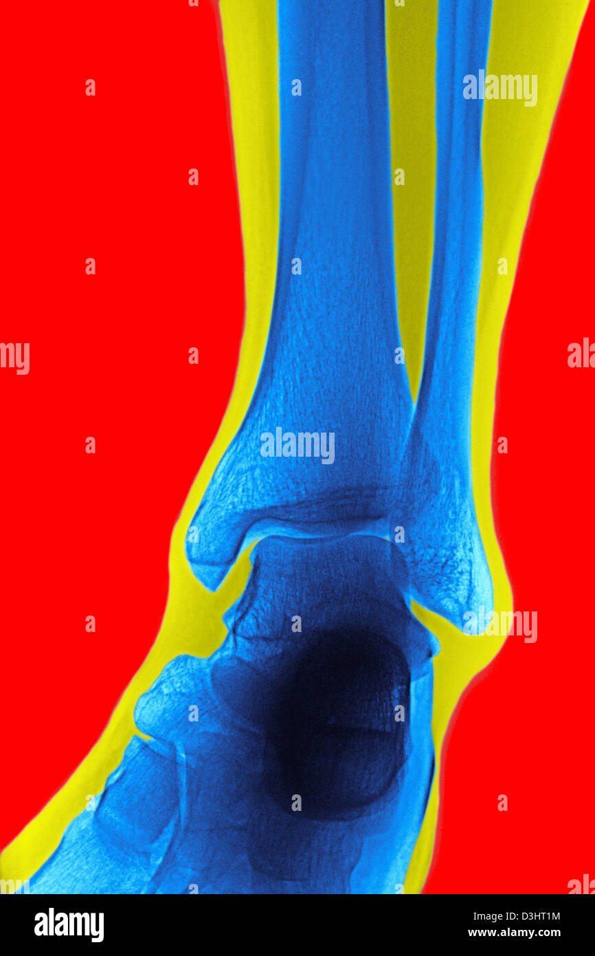ANKLE, X-RAY - Stock Image
