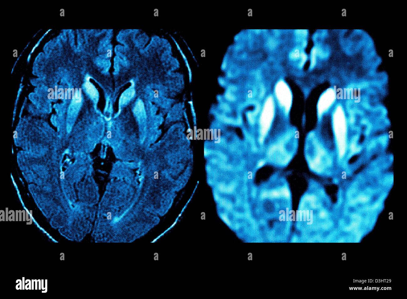 CREUTZFELDT JAKOB DISEASE, MRI - Stock Image