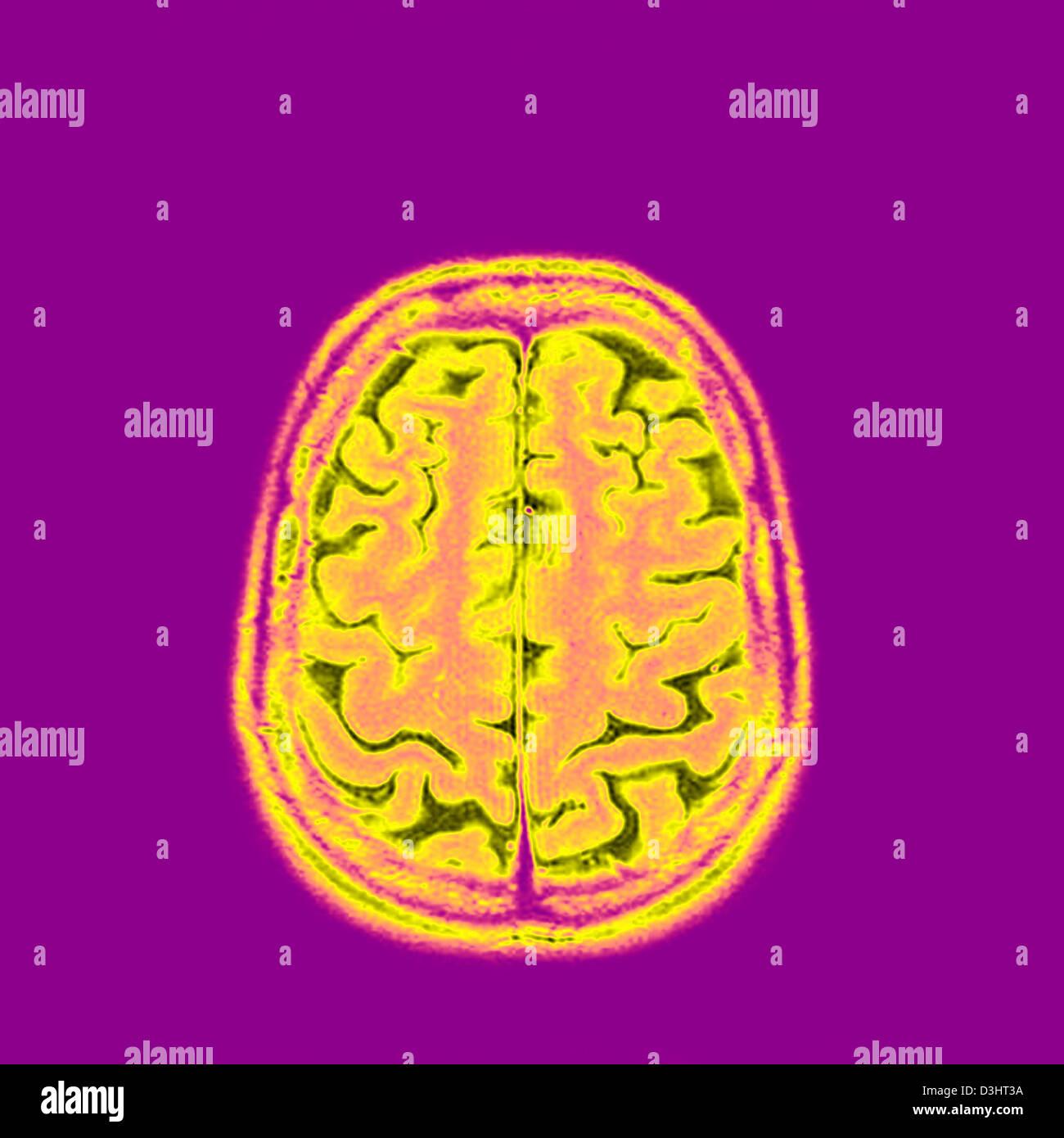 BRAIN, MRI Stock Photo