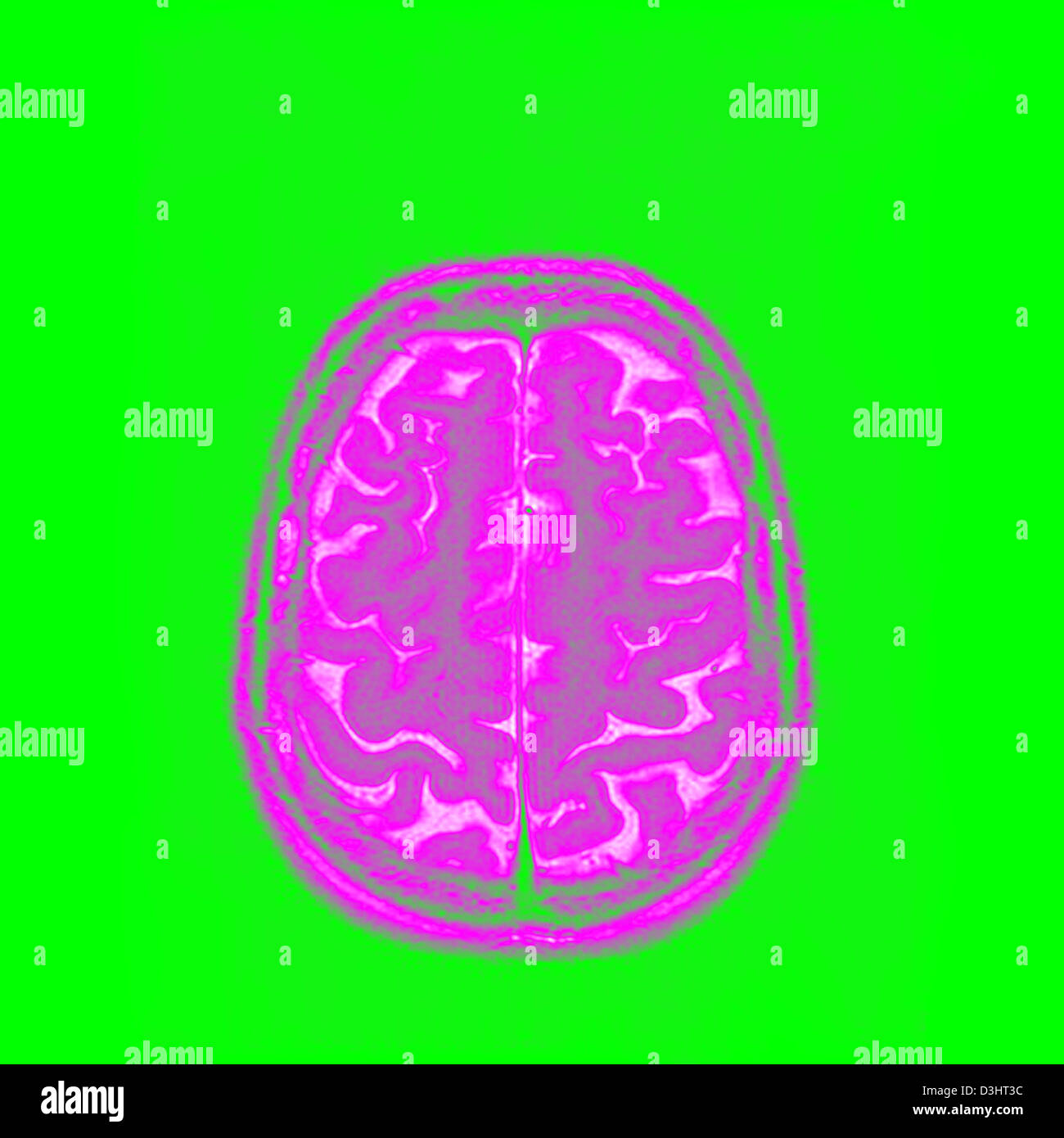 BRAIN, MRI - Stock Image
