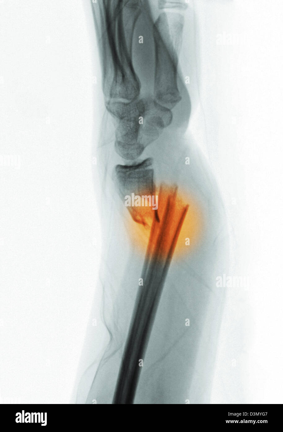 x-ray showing a distal radius and ulna fracture in a 12 year old ...