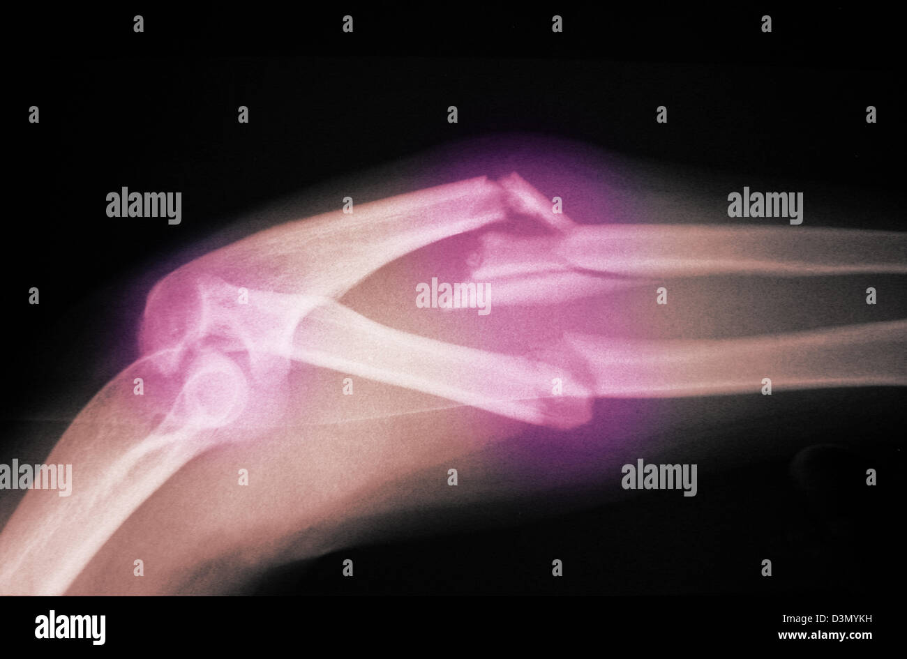 x-ray showing a severely angulated and comminuted fracture of the  forearm - Stock Image