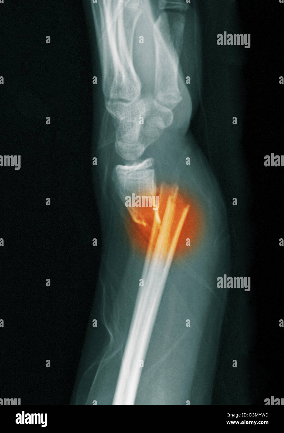 x-ray showing a distal radius and ulna fracture in a 12 year old girl - Stock Image
