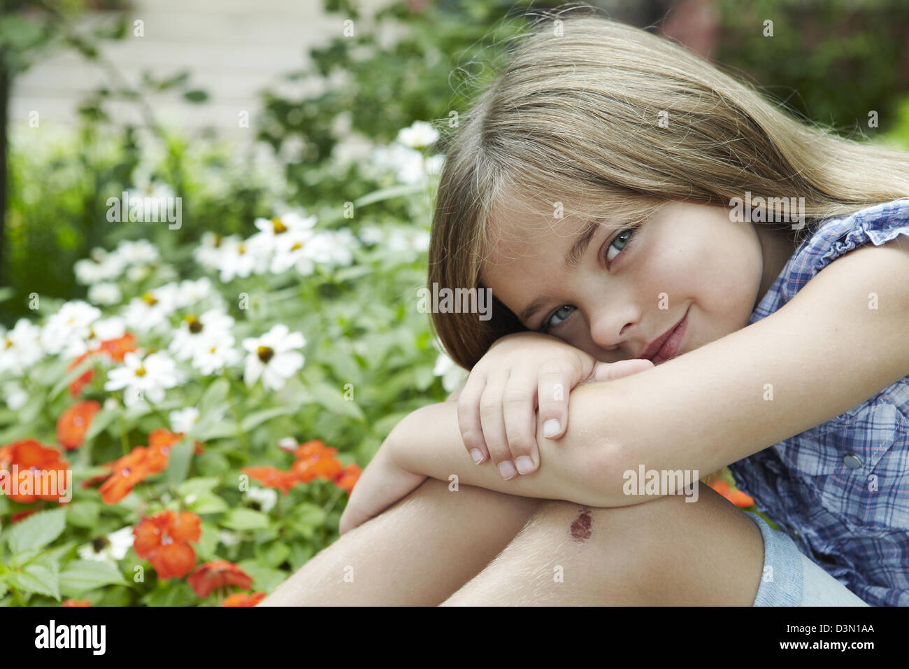 7 year old girl with skinned wounded knee - Stock Image