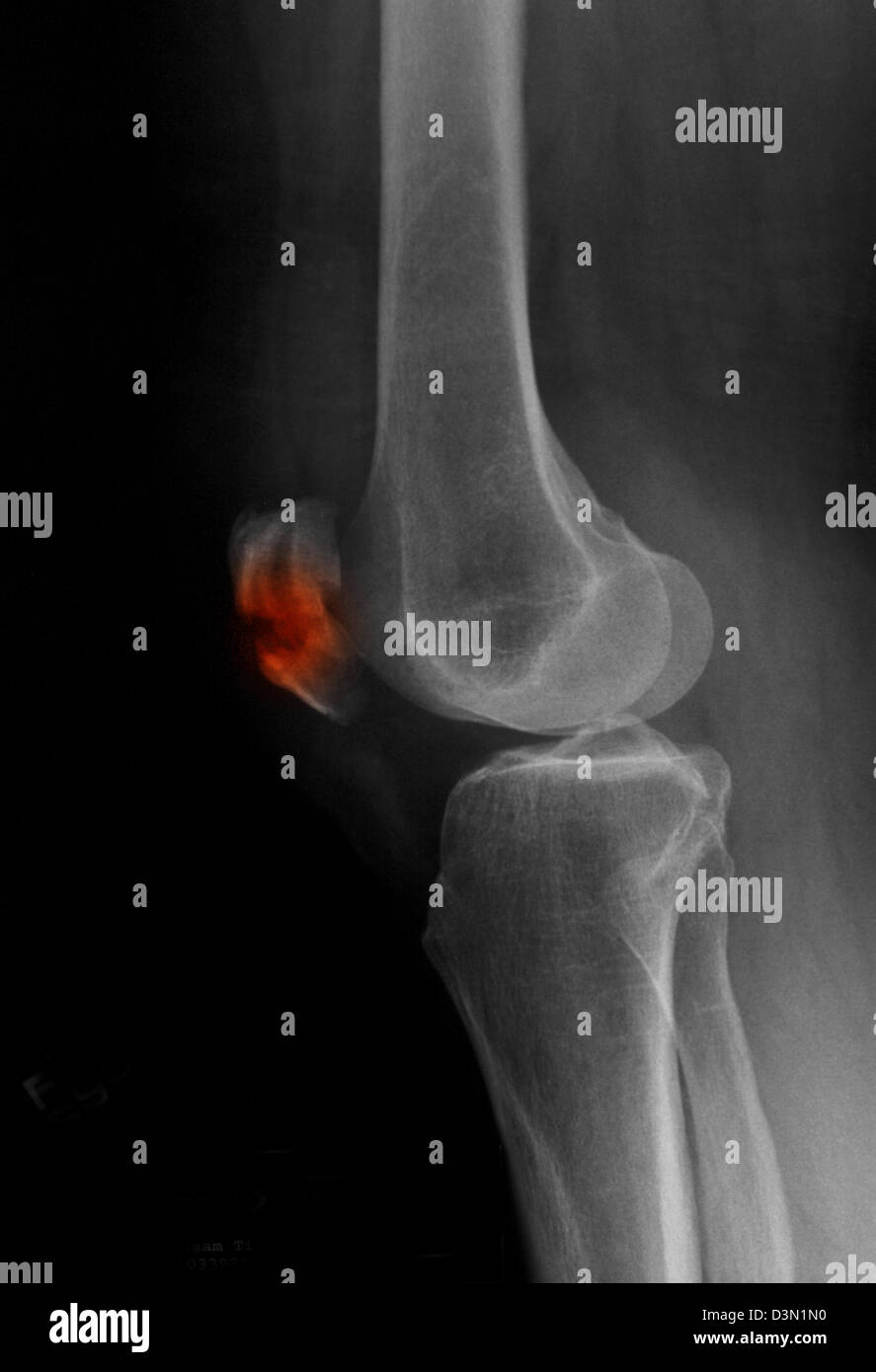 x-ray showing a fracture of the patella, kneecap Stock Photo