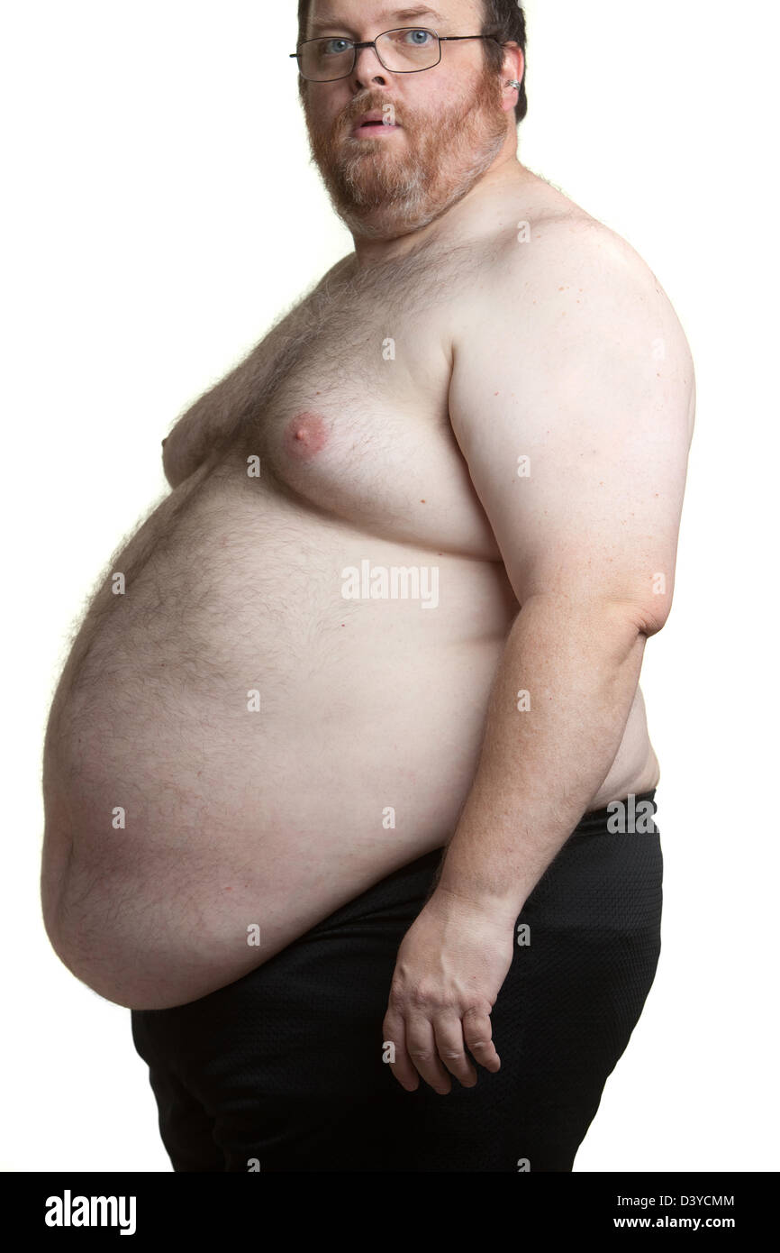 Man In His Late 40 S Weighing In Around 450 Pounds Morbid Obesity Stock Photo Alamy
