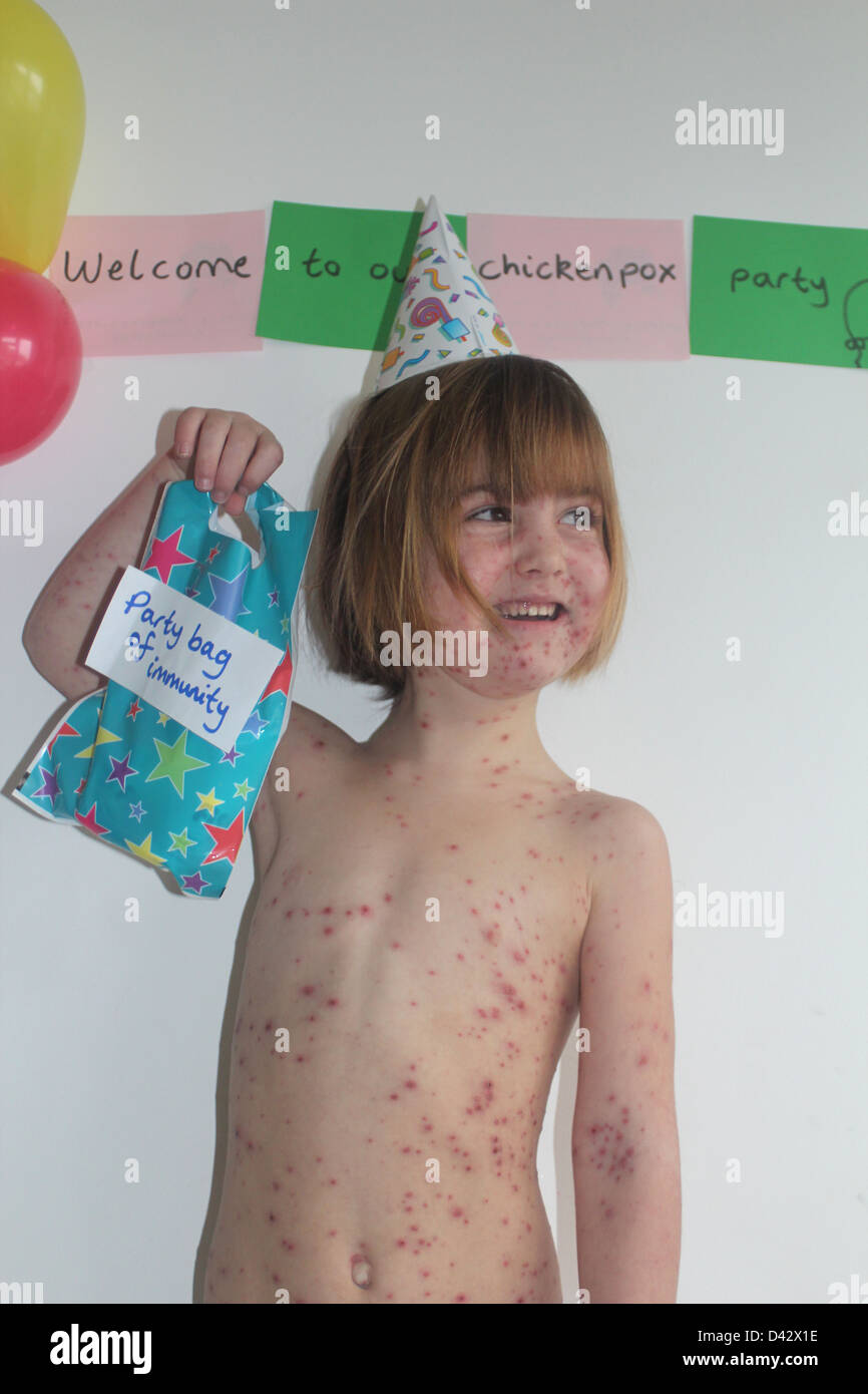 Child having a chickenpox party - Stock Image