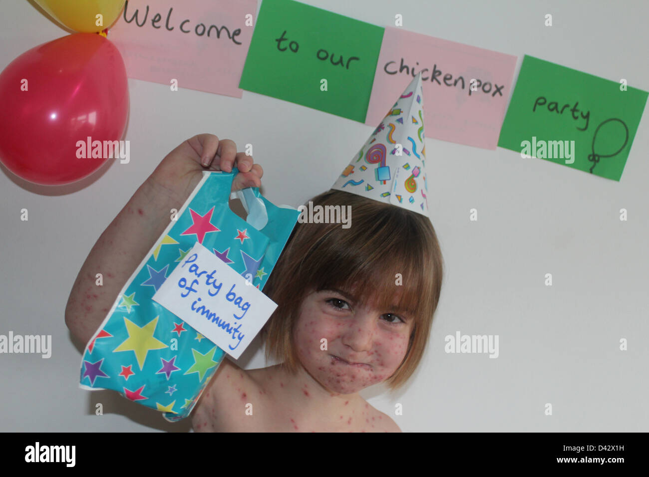 Girl having a chickenpox party - Stock Image