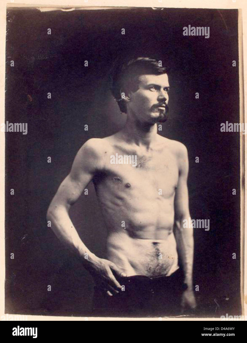 [James Brownlee : Wounds in chest & abdomen.] - Stock Image