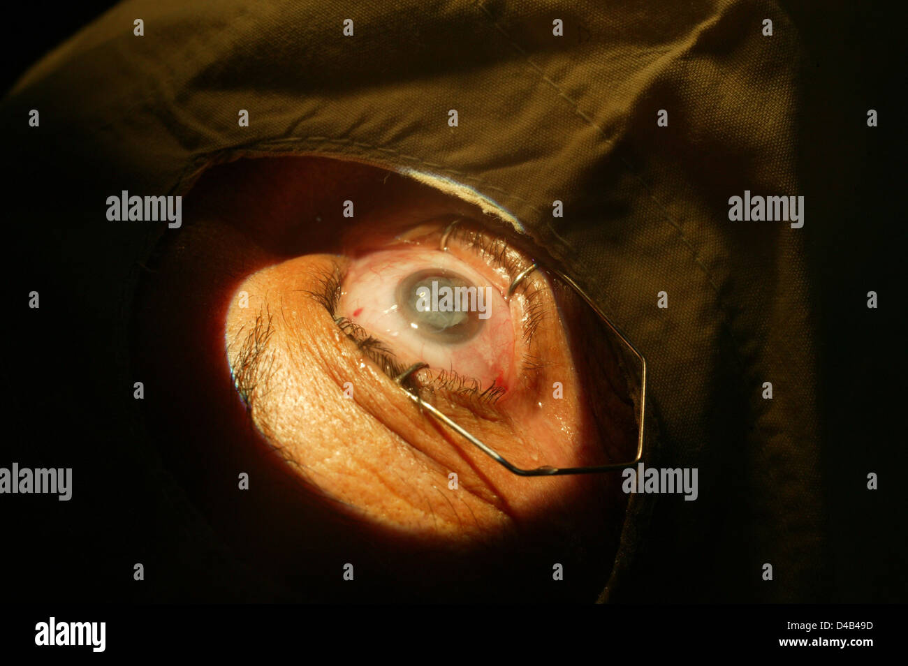 Metal retractors holding patients eyelids open during a cataract operation - Stock Image