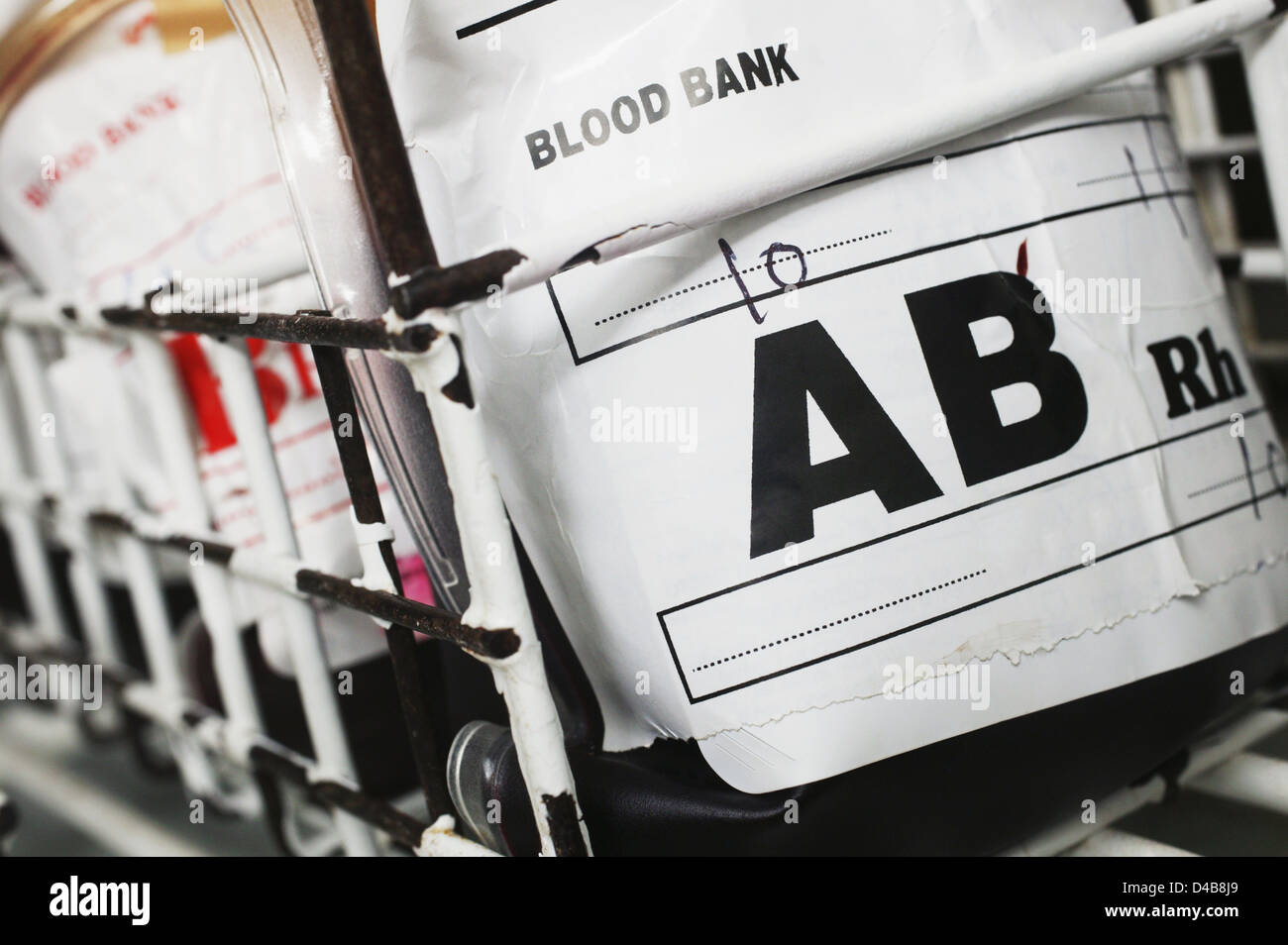 Blood group AB contains both A an B antigens and has no Antibodies present - Stock Image